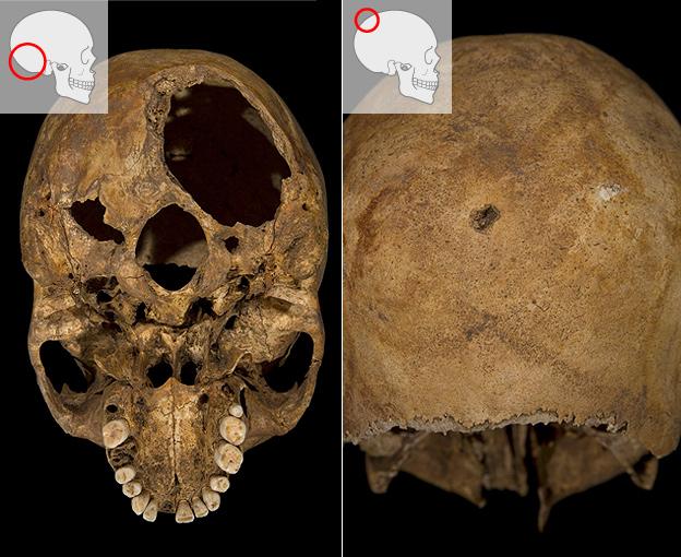 Skull of a king?