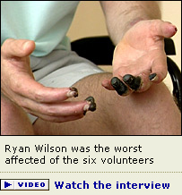 Ryan Wilson, one of the drug trial volunteers