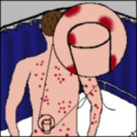An artist's impression of a patient suffering from meningitis.