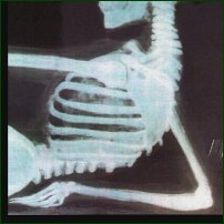 An X-Ray showing curvature of the spine, or scoliosis.