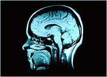 http://www.bbc.co.uk/science/humanbody/images/mind/ocd/morescience_ocd/more_brain_scan.jpg
