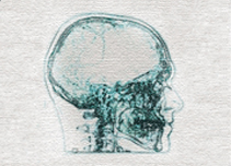 Side-on xray of skull