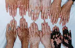Hands with people of vitiligo