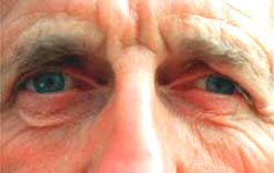 A close-up of an elderly man's eyes