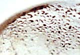 Detail of the anaemic lesions in the eye sockets