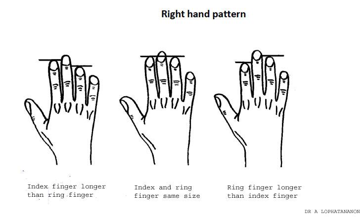 BBC - Fergus's Medical Files: Can finger length predict your risk of ...