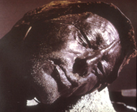 Image of the Tollund man whose body was preserved in a peat bog