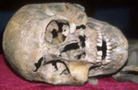 Photo of a warrior's skull found at the Repton dig