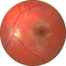 Bbc gcse bitesize the eye a photograph of a human retina seen through the eye ccuart Image collections