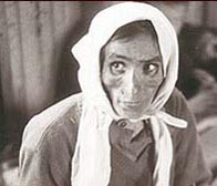 Photograph showing a woman in the hut where Typhus sufferers were housed