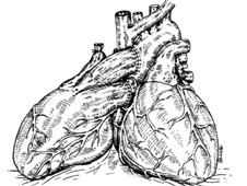 "Illustration of the ""piggy-back"" donor heart"