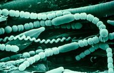 Phylum protozoa pictures as well Ameba Menavka also 2i2m Protista likewise PROTOZOA besides Page. on amoeba protista