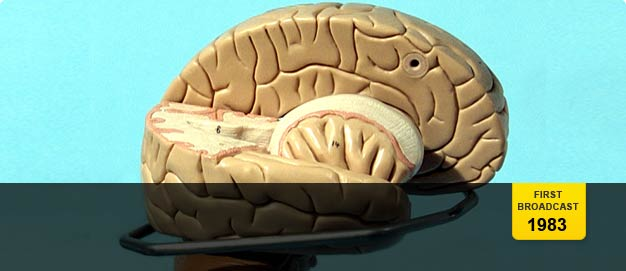 A model of a dissected brain.