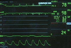 A monitor showing heartbeats