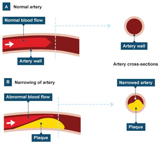 Causes Of Coronary Heart Disease Bbc Bitesize ...