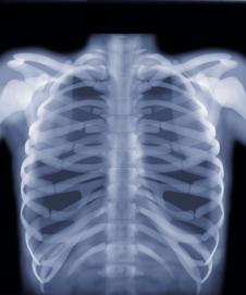 BBC - GCSE Bitesize: Gamma radiation and X-rays