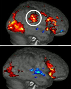 The ringed area shows the pain centres responding in the brain of the top subject