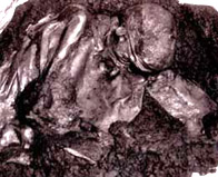 Photograph of the bog body found at Lindow Moss in Cheshire
