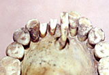 The worn teeth of an ancient Egyptian showing an abscess drainage hole