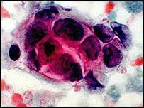 Células de câncer de mama