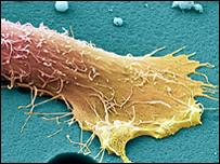 سلول سرطان پروستات